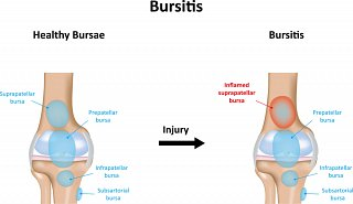 Bursitis Symptoms in Knee