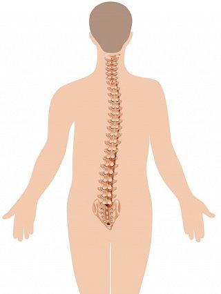 Lumbar Scoliosis