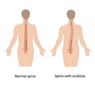 Mild Scoliosis