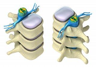 Anatomy of the Spine II