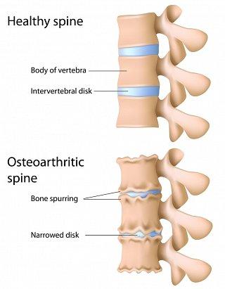 Osteoarthritic Spine image