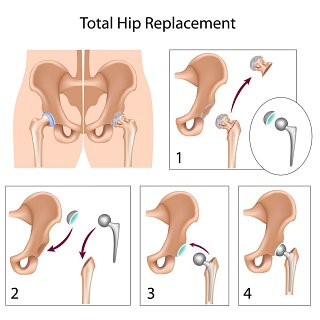 Total Hip Replacement recovery